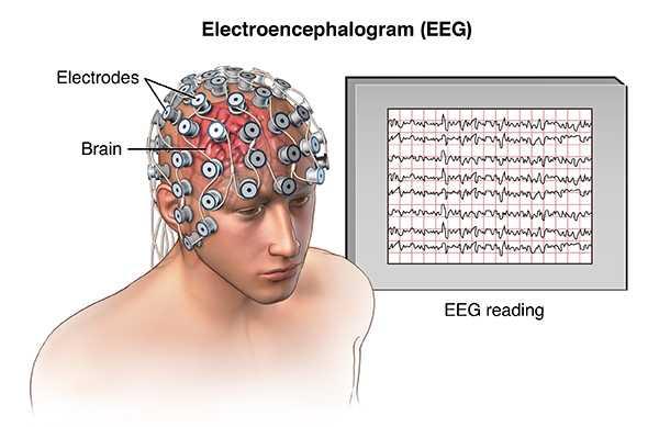 Диагностика мигрени: как определить мигрень по МРТ или ЭЭГ