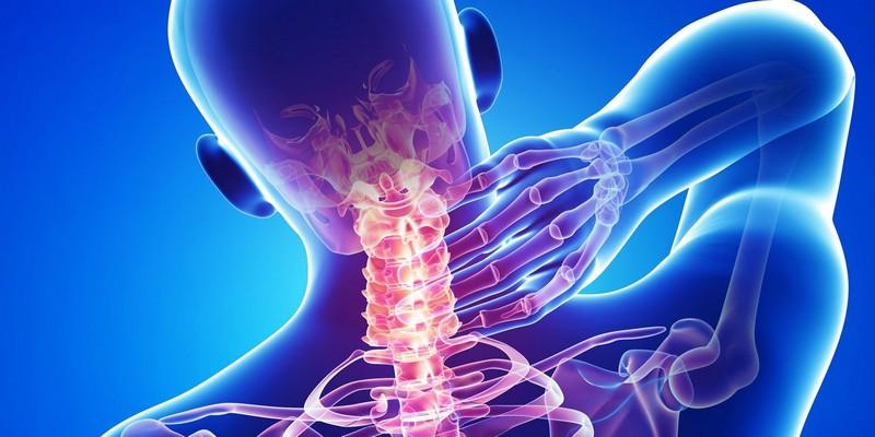 Шейный остеохондроз - частая причина покалывания в затылке