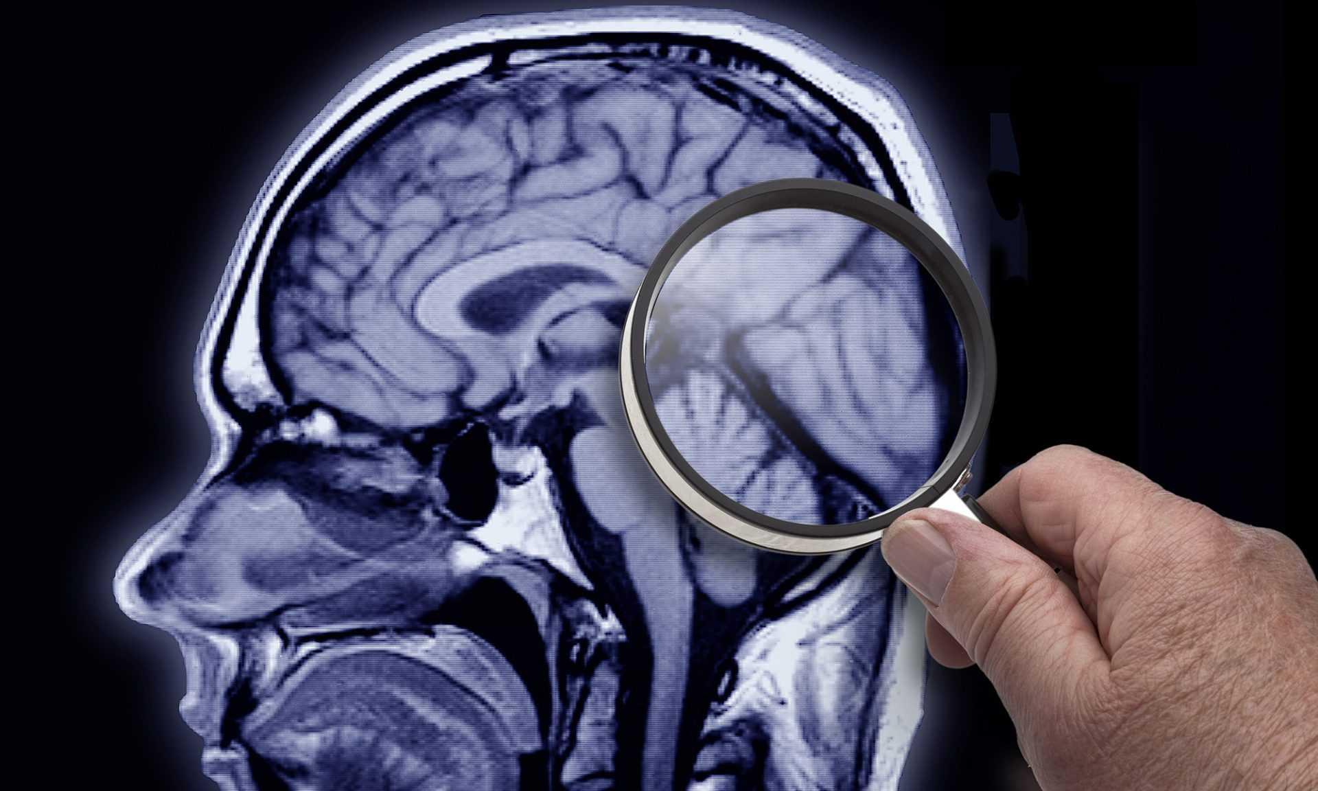 Внезапная потеря памяти: причины и виды амнезии