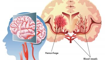 Последствия и восстановления после обширного геморрагического инсульта