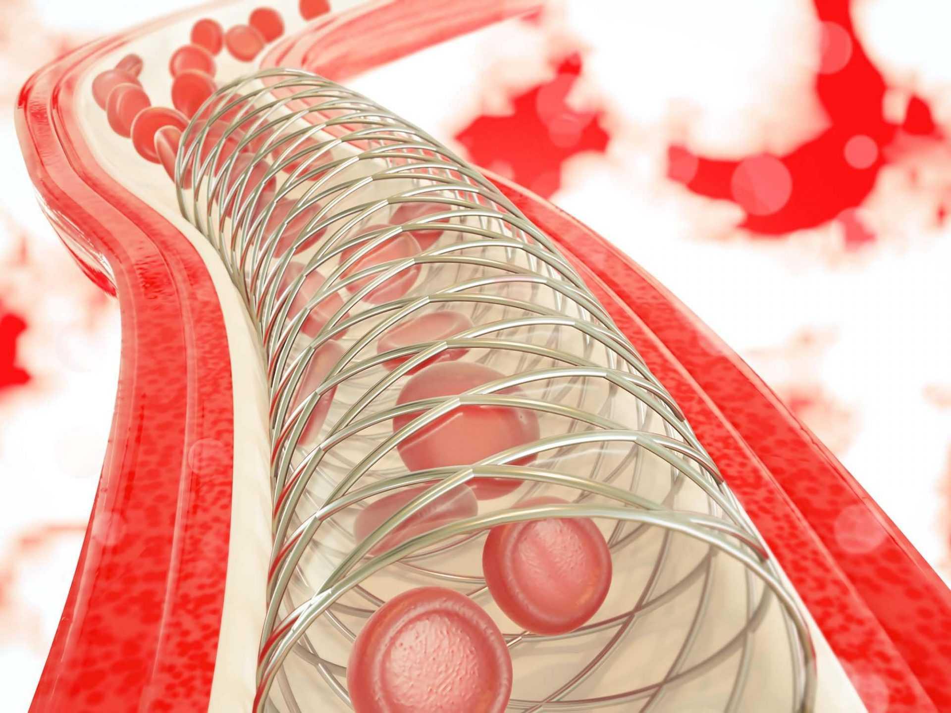Последствия и прогноз для жизни при ишемическом инсульте