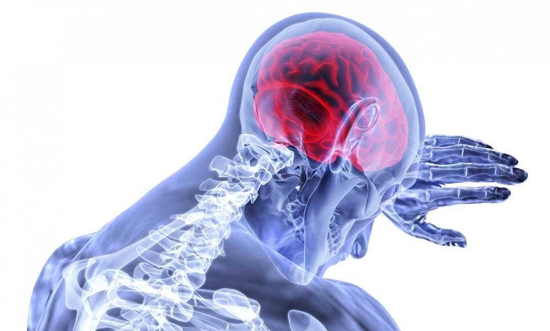 Обширное кровоизлияние в мозг: причины и последствия инсульта